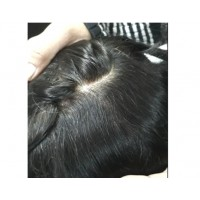 HD Thin Magic hair patch